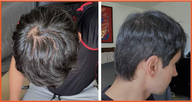 Faraz Khan hair regrowth