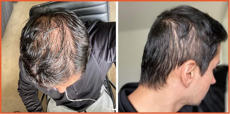 Faraz Khan hair loss before